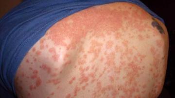 Guttate-Psoriasis