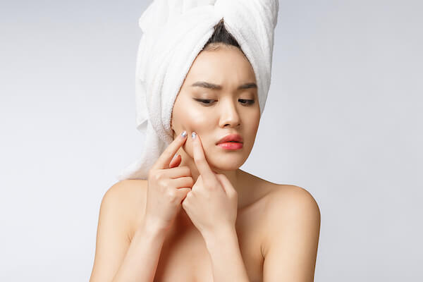 Get Rid Of Acne Scars, Acne Treatment